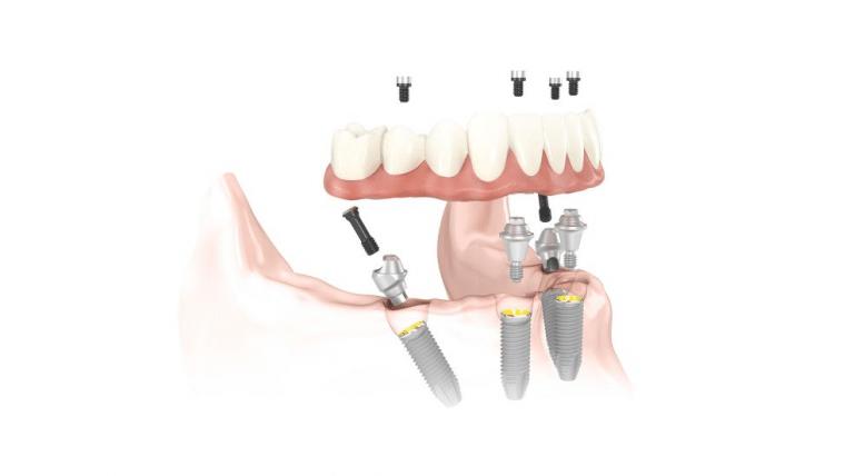 All-on-4 Zahnersatz Implantate» Neue Zähne auf 4 Implantaten, sofort belastbar